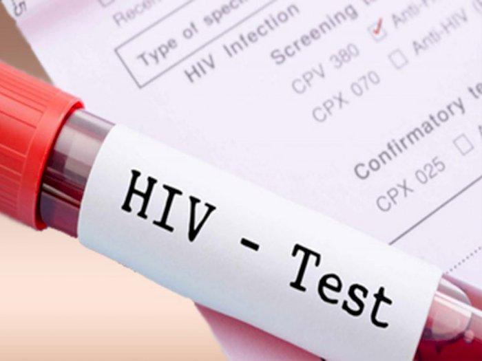 Penurunan ODHA di Bogor Tak Diimbangi Ketersediaan Obat ARV