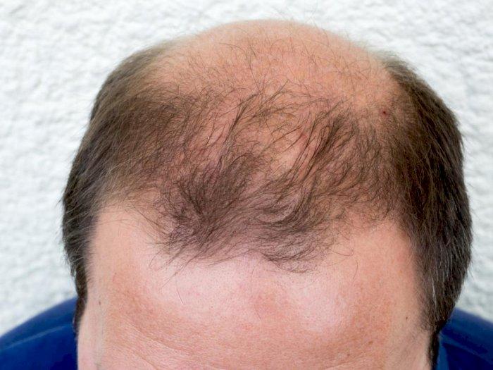 Inilah Tips Ampuh Mengatasi Kebotakan Rambut Indozone Id