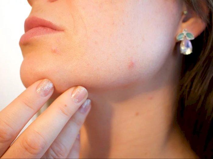 4 Kandungan Skincare yang Ampuh Mengatasi Jerawat