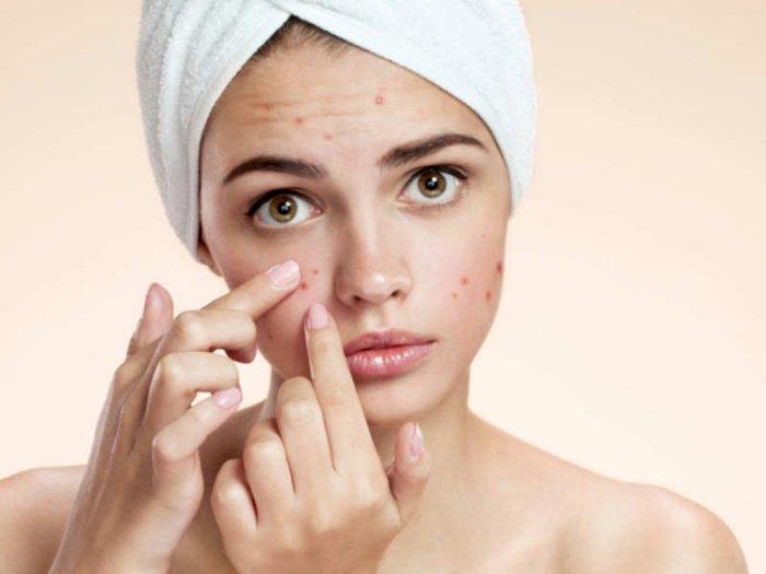 Skincare Tak Cocok, Kapan Harus Menghentikan Pemakaian?