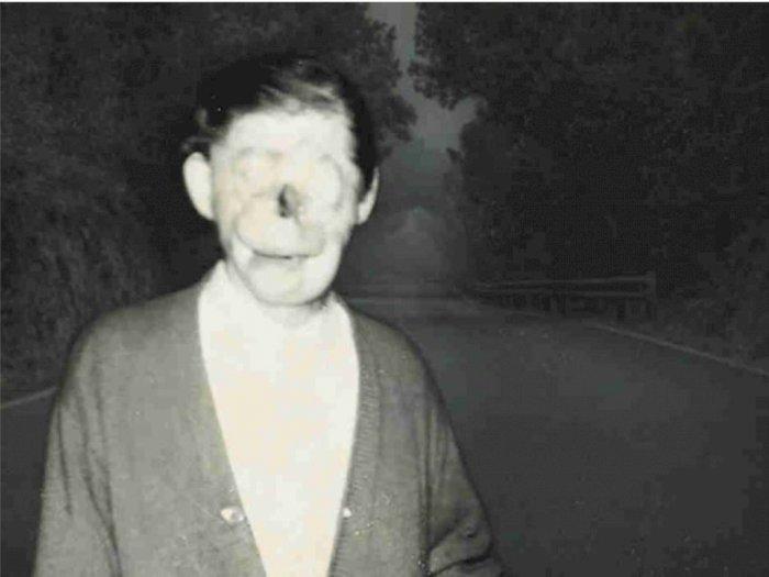 Pria Ini Dikira Hantu dan Dijuluki 'Charlie No Face'