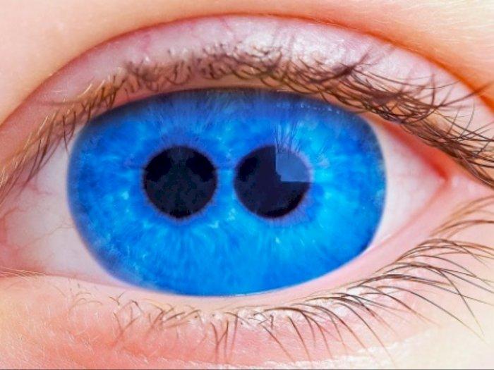 Bukan Kutukan, Polycoria Bikin Mata Punya Lebih dari 1 Pupil