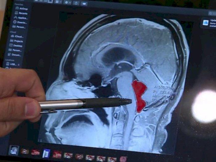 Sakit Kepala Tak Sembuh-sembuh, Ternyata  Ada Cacing Pita di Otak