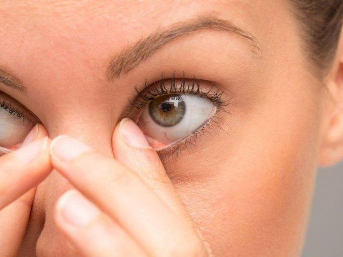 Selain Obat, Ini Cara Mudah untuk Mengatasi Mata Kering