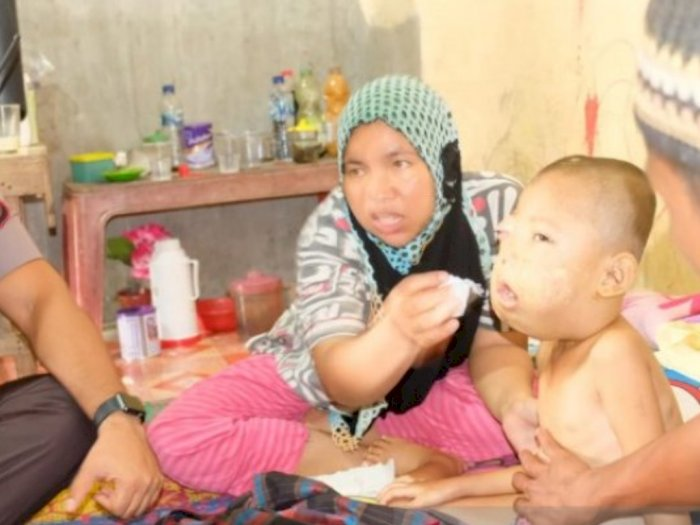 Kapolres Tanjungbalai Bantu Anak Penderita Tumor Bernama Al Wahdy