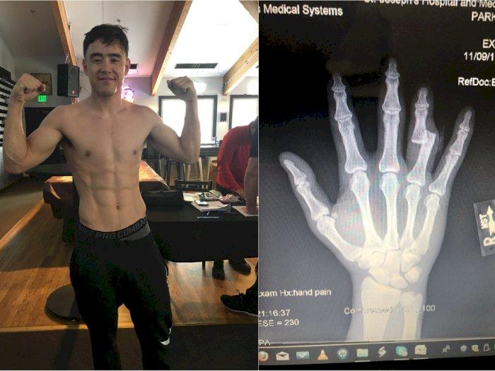 Greget! Petarung MMA Ini Tetap Bisa Menang Meski Patah Tulang