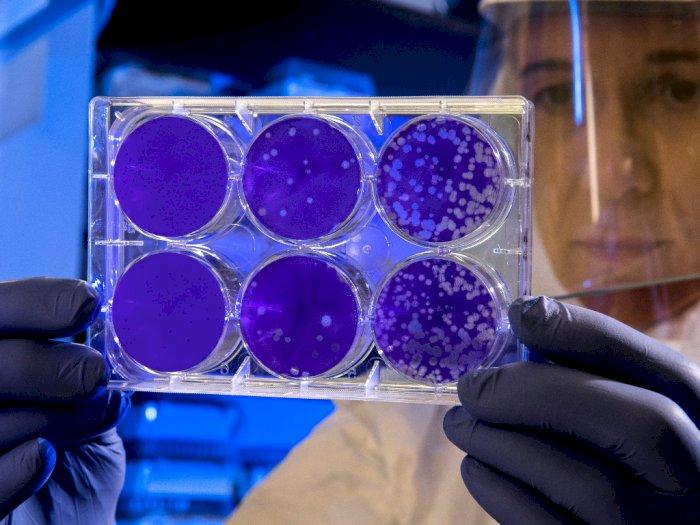 Sebut Virus Corona Bisa Menular Melalui Kentut, Ini Pendapat Para Ahli