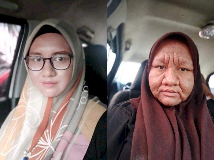 Wajah Wanita Ini Jadi Mirip Nenek-nenek karena Hamil, Kok Bisa?