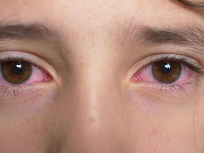 Benarkah Mata Merah Juga Gejala dari Virus Corona?