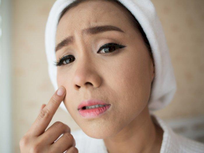 Berbagai Mitos Seputar Pori-Pori Wajah yang Bikin Salah Kaprah