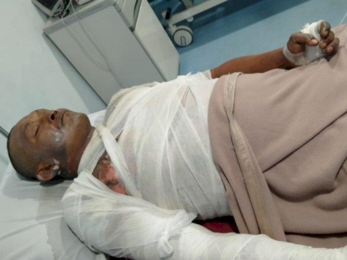 Berniat Ingin Melerai Perkelahian, Ahmad Budiono Malah Dibakar