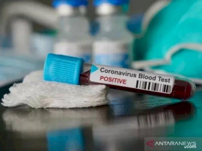 Pasien Sembuh COVID-19 di Sumut Bertambah Lagi