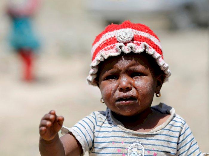 UNICEF: Tanpa Bantuan Segera, Jutaan Anak di Yaman Terancam Meninggal Akibat Kelaparan
