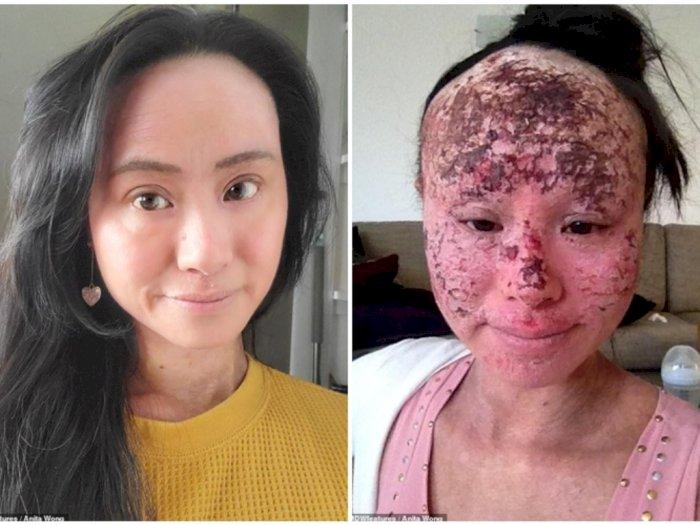 Terlalu Sering Pakai Obat untuk Sembuhkan Eczema, Wajah Perempuan Ini Jadi Hancur