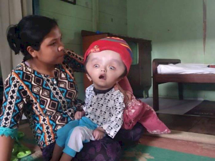 Derita Gihon, Kepala Membengkak sejak Usia 2 Bulan, Ditolak Rumah Sakit Karena Alasan Ini