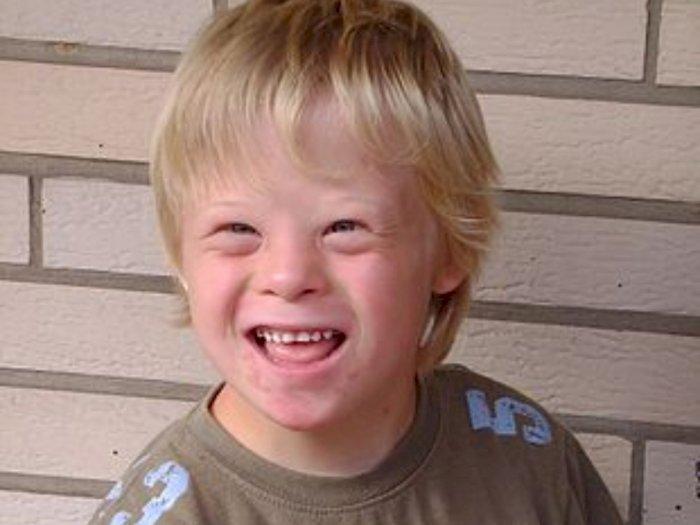 Penyakit Sindrom Down - Bagaimana Gejala, Penyebab dan Komplikasinya?
