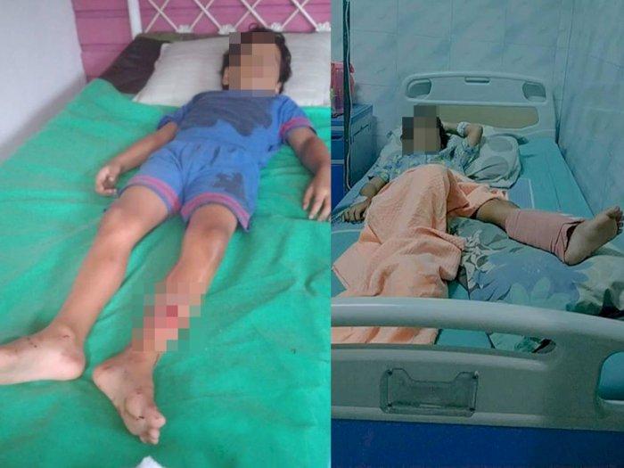 Kecelakaan Tabrak Lari di Medan, Korban Patah Kaki dan Pelaku Kabur ke Aceh