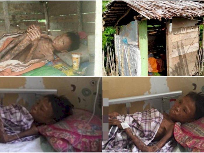 Kisah Dua Bocah Yatim Piatu, Adik Rawat Abangnya di Gubuk Karena Terjangkit Penyakit Aneh