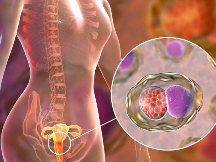 Kanker Serviks: Gejala, Penyebab, dan Cara Mencegahnya