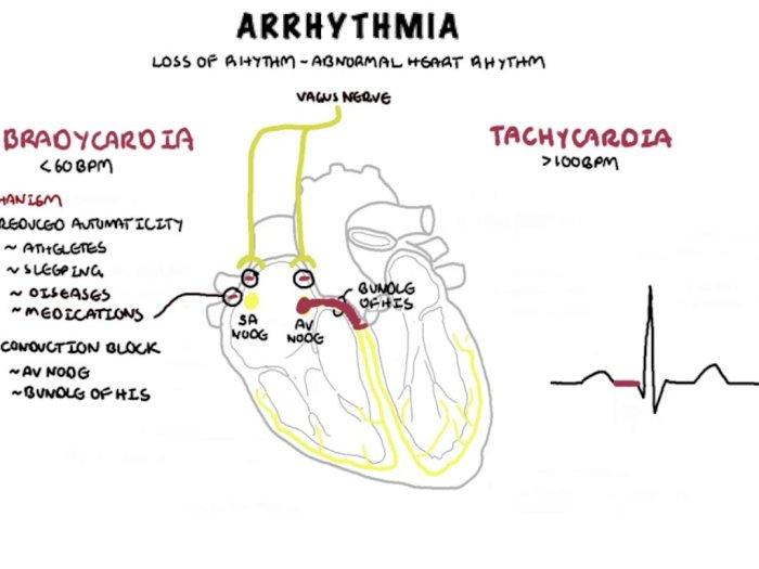 Apa itu Aritmia dan Bagaimana Cara Mencegahnya?