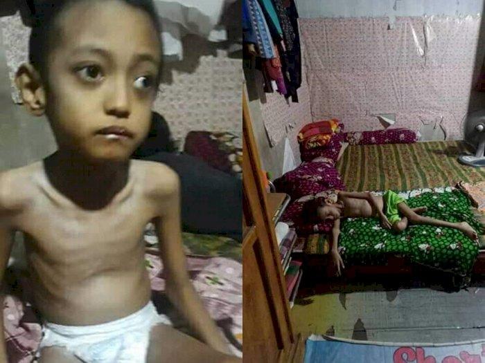 Bocah 13 Tahun Menderita Gizi Buruk, Cuma Makan Mie Instan, Kini Lumpuh dan Sulit Bicara