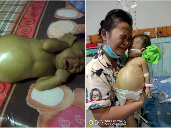 Sejak Lahir Hanya Menangis, Bayi Penderita Kelainan Empedu Kini Meninggal, Biayanya Rp 1 M