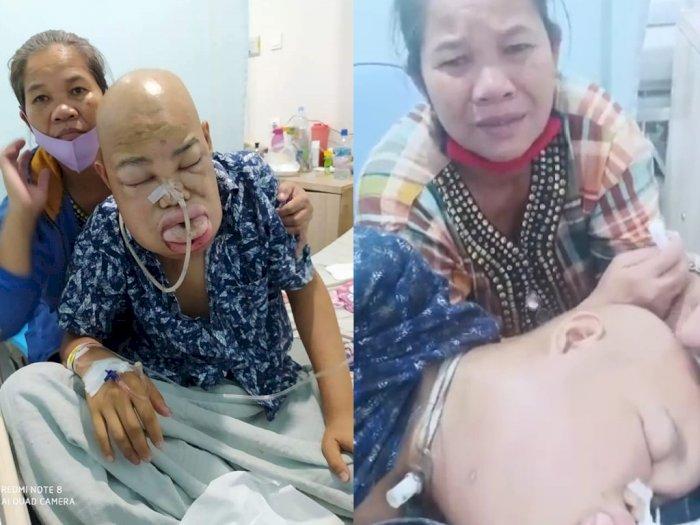 Sedih! Orangtua Cuma Petani, Lidah Membengkak Akibat Kanker, 'Ambillah Nyawaku Tuhan'