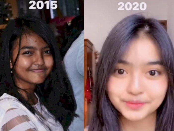 Viral, Dulunya Berkulit Gelap dan Dekil, Wajah Gadis Ini Berubah Total Lima Tahun Kemudian