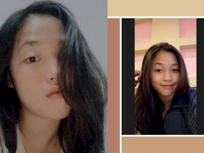 Clarissa Kie, Gadis Cantik 1 SMA Ikut Terpanggang dalam Ledakan Gas Elpiji di Siantar