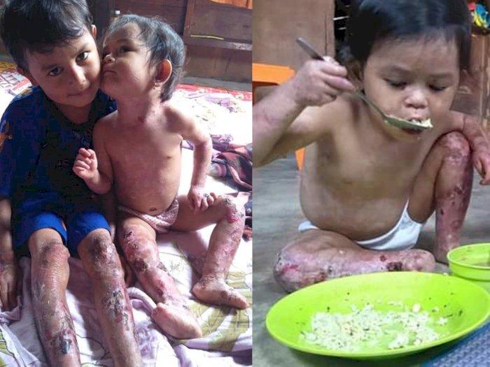 Sedih! Abang Adik Menderita Penyakit Aneh, Orangtuanya Cuma Penyadap Getah, Butuh Bantuan