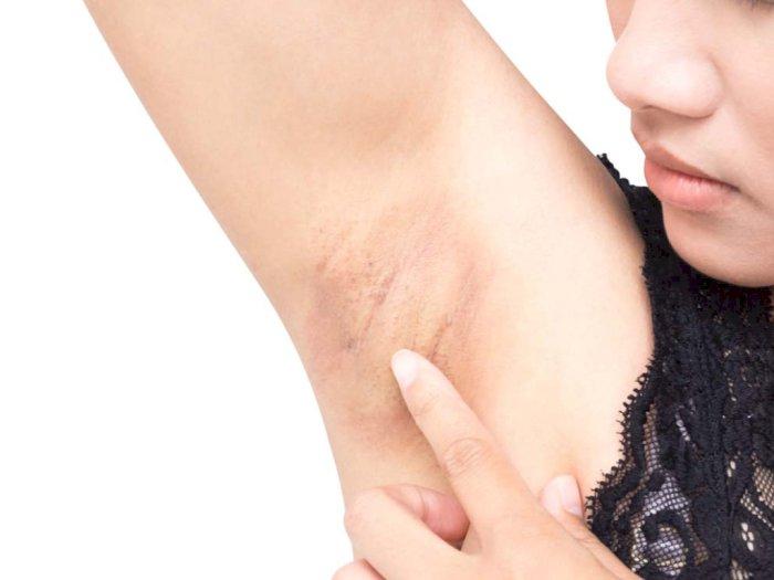 Skincare Ini Bisa Digunakan untuk Cerahkan Ketiak Hitam