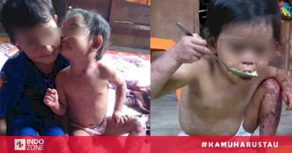 Pasien Banyak, Indonesia Tak Punya Laboratorium Di