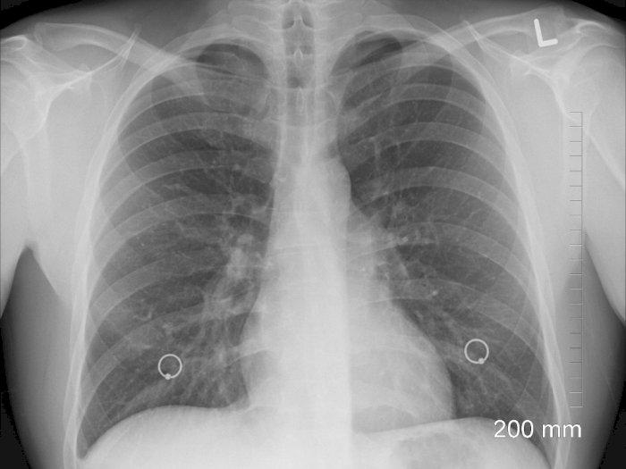 Benarkah Suara Serak Gejala dari Kanker Paru-paru yang Harus Diwaspadai?