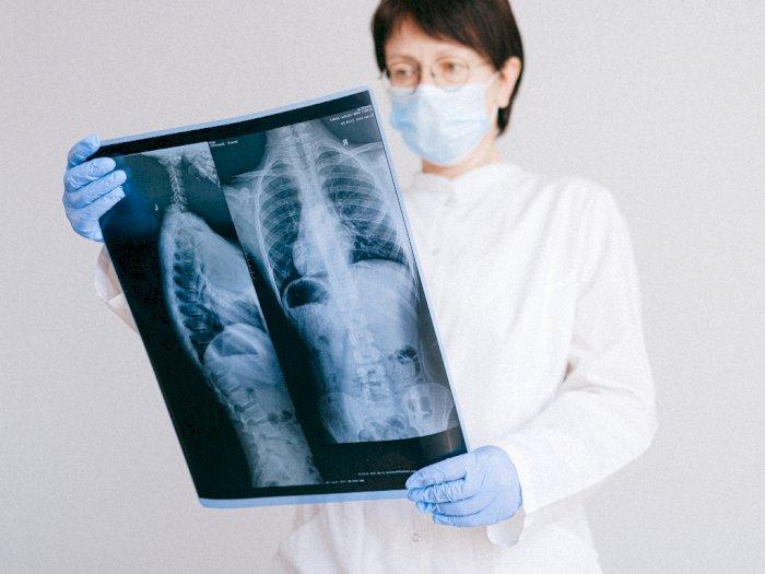 Pembengkakan Tertentu Bisa Jadi Tanda Gejala Kanker Paru-paru