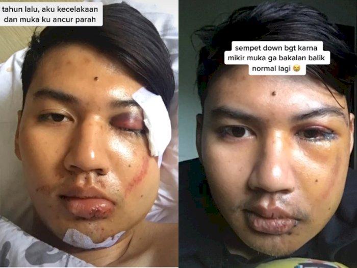 Curhatan Pria yang Sempat Down Pasca Kecelakaan, Namun Bisa Bangkit Kembali Karena Sahabat