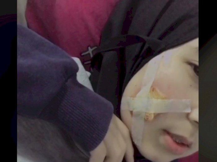 Viral Cewek Cantik Benjol Besar di Pipi hingga Dioperasi Gegara Pakai Masker Kain