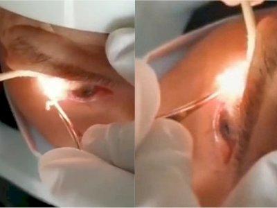 Mengeluh Sakit Mata, Dokter Keluarkan 20 Cacing Gelang dari Mata Pria Ini, Ini Videonya