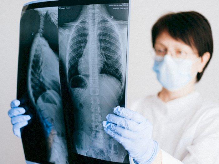 Studi: Kerusakan Paru-paru Ditemukan Pada Pasien yang Meninggal Karena Covid-19