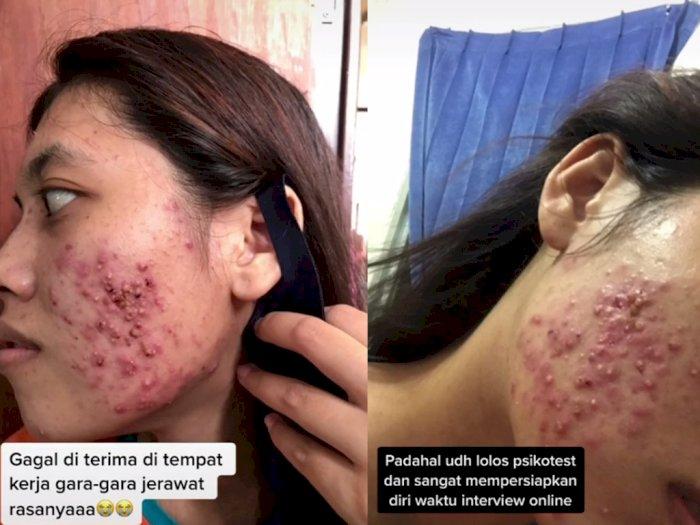 Pilu! Wanita Ini Gagal Dapat Kerja karena Jerawat di Wajah, Padahal Lolos Psikotest
