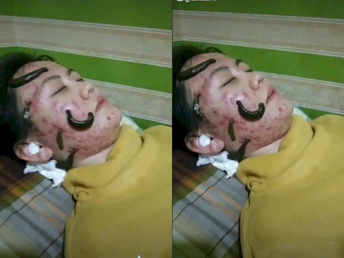 Wanita ini Obati Wajahnya yang Berjerawat Pakai Lintah, Bikin Netizen Merinding