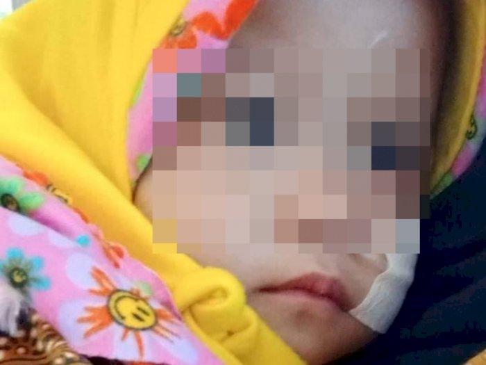 Memilukan, Masih 2 Tahun, Bayi Ini Sudah Harus Operasi Jantung, Butuh Bantuan Darah AB