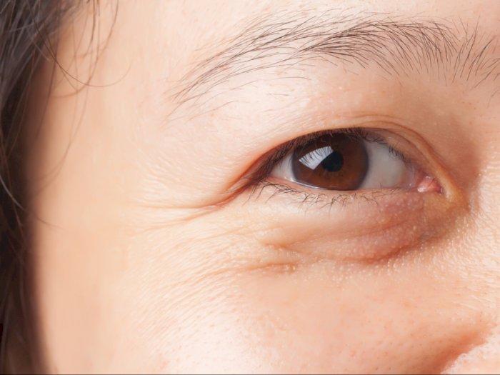 8 Cara Efektif Menghilangkan Kantong Mata Yang Wajib Kamu Coba