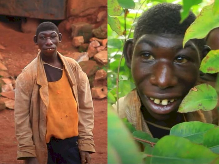 Zanziman Ellie, 'Mowgli' di Dunia Nyata yang Sering Dibully Sampai Pilih Hidup di Hutan