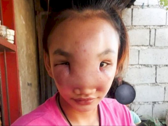 Gara-gara Pencet Jerawat di Hidung, Wajah Wanita Ini Bengkak dan Alami Kebutaan