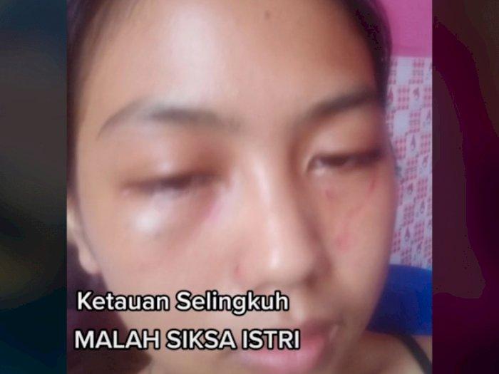 Merantau Demi Keluarga, Suami di Kampung Selingkuh, Wanita Ini Habis Dihajar Suaminya
