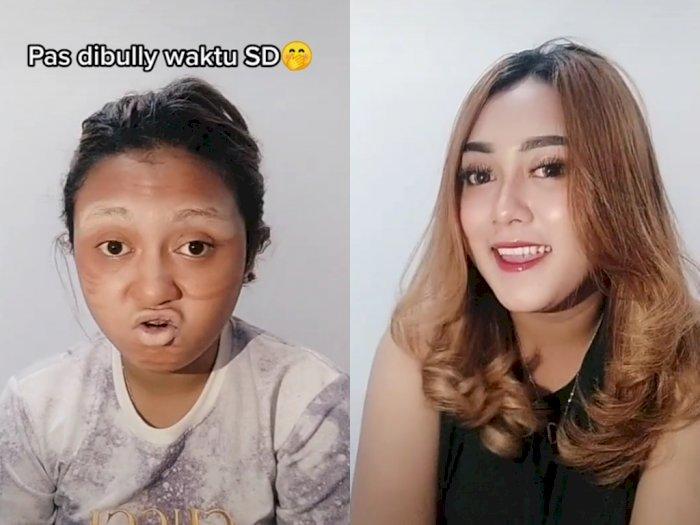 Dibully Waktu SD, Penampilan Wanita Ini Malah Bikin Netizen Pangling Usai Kenal Skincare