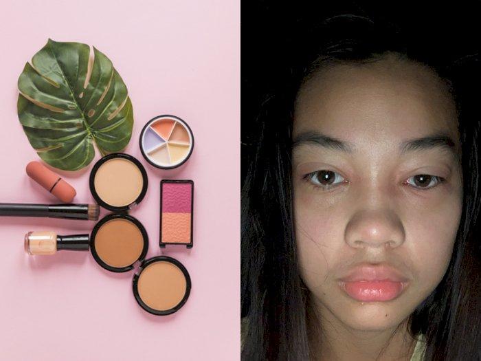 Wajah Wanita Ini Berakhir Bengkak dan Bernanah  Setelah Pakai Makeup Expired