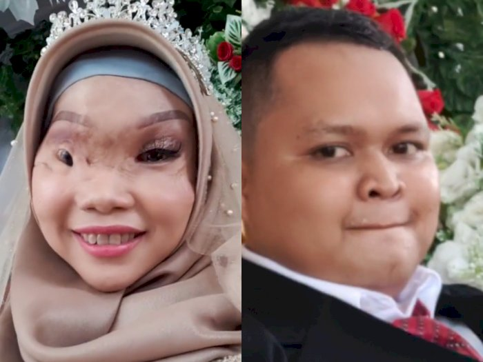 Wanita Korban Kecelakaan Perahu Kini Sudah di Pelaminan, Definisi Cinta Tak Kenal Fisik