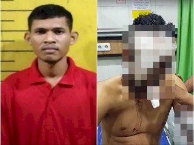 Fakta Pemuda Siram Air Keras di Medan, Cemburu Pujaan Hatinya Pacaran dengan Korban
