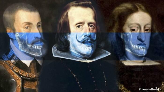 Keluarga Habsburg dan bentuk rahang mereka.